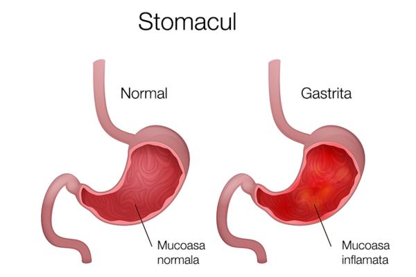 simptomele durerii intestinale dureri articulare)