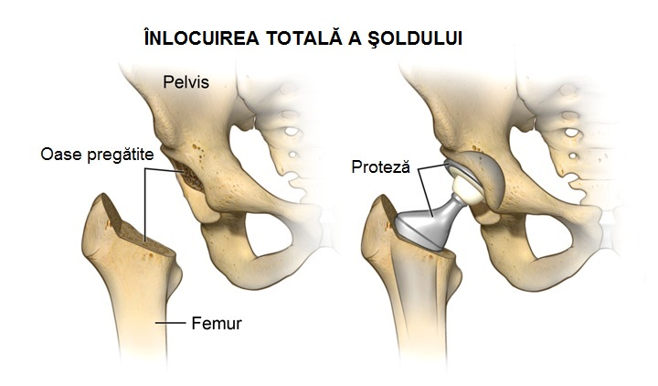 tratamentul simptomelor fracturii de șold)