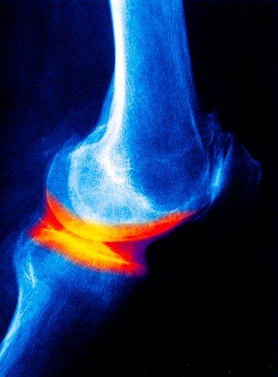 artroza deformantă a articulației piciorului drept cu durere în articulațiile cotului