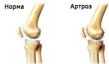crampe în artroza genunchiului)