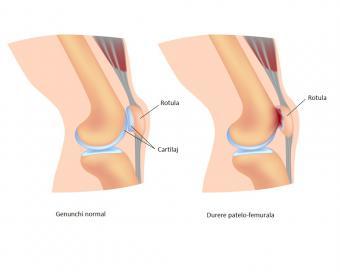 cu durere în articulațiile genunchiului cu o creștere)