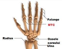 artrita pe falangele degetelor)