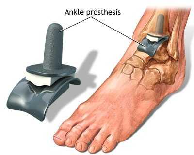 deformarea articulației gleznei cu artroză