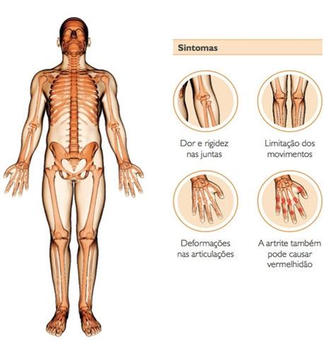 Artroza genunchiului tratament de 1 și 2 grade - Artrita genunchiului 2 si 3 grade