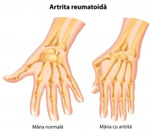 artrita degetelor mâinii h)
