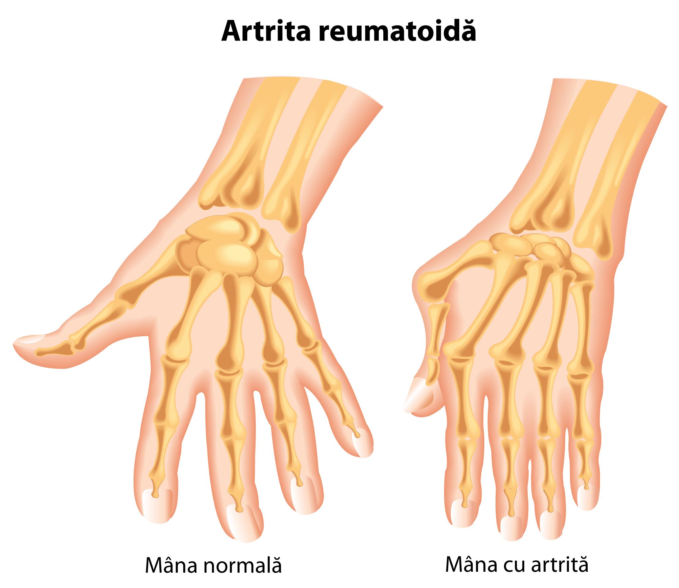 umflarea degetelor cu artrită)