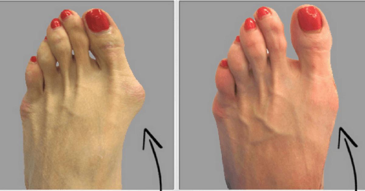 articulațiile degetului de la picioare)