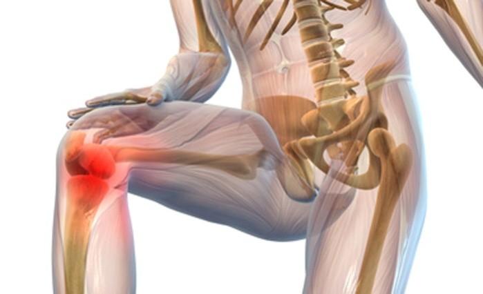 Artroza genunchi
