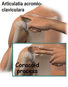 artroza acromioclaviculară a tratamentului articulației umărului
