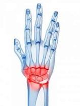 boli inflamatorii la încheietura mâinii)