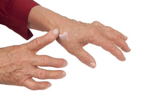 umflarea durerii în articulațiile mâinilor)