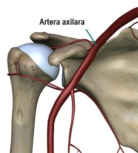 artroza și osteoporoza articulației umărului