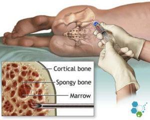 tratamentul articulațiilor cu celule stem)