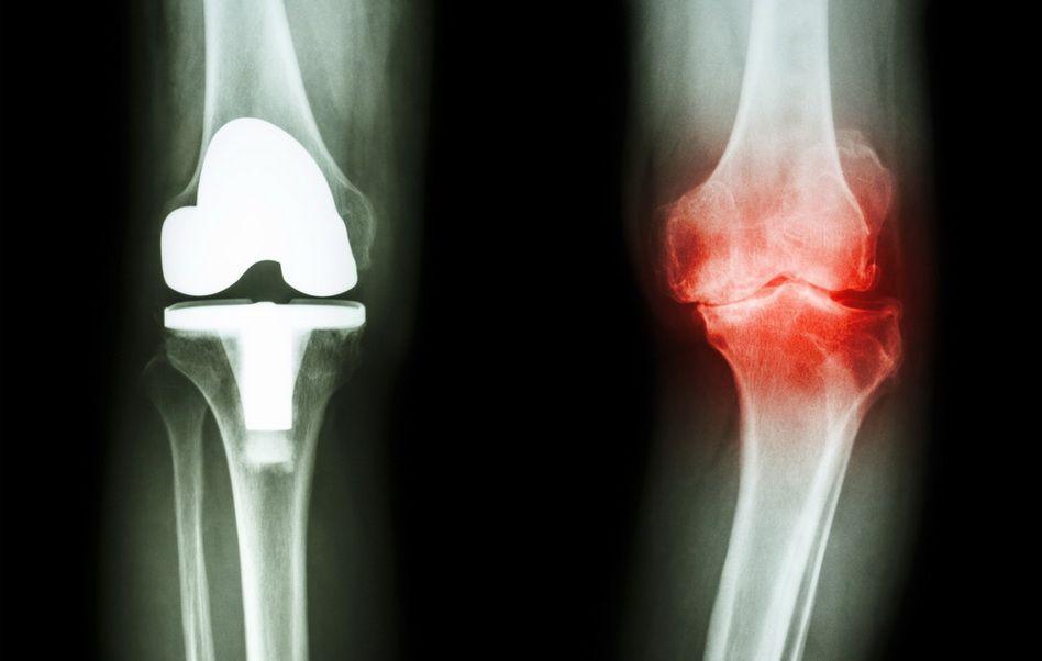 tratamentul piciorului pentru artroza genunchiului