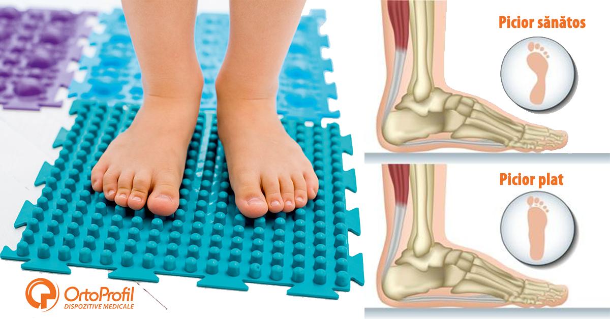 articulațiile pe picioare doare la o vârstă fragedă