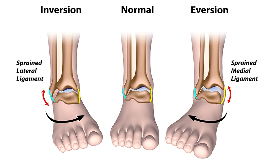 tratamentul simptomelor reumatismelor articulare otrăvește durerea articulațiilor musculare