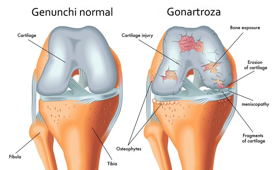 gonartroza de gradul 1 al preparatelor articulației genunchiului