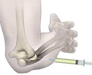 decât anestezierea durerii în articulațiile injecțiilor picioarelor)