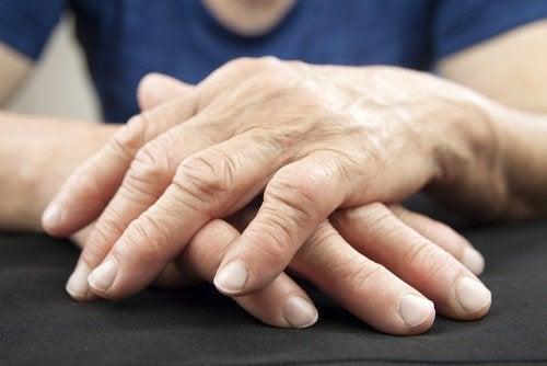 boala intestinului și dureri articulare)