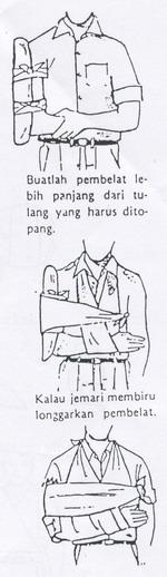 Tipuri de durere