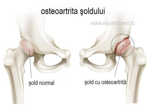 artrita artrita a soldului)