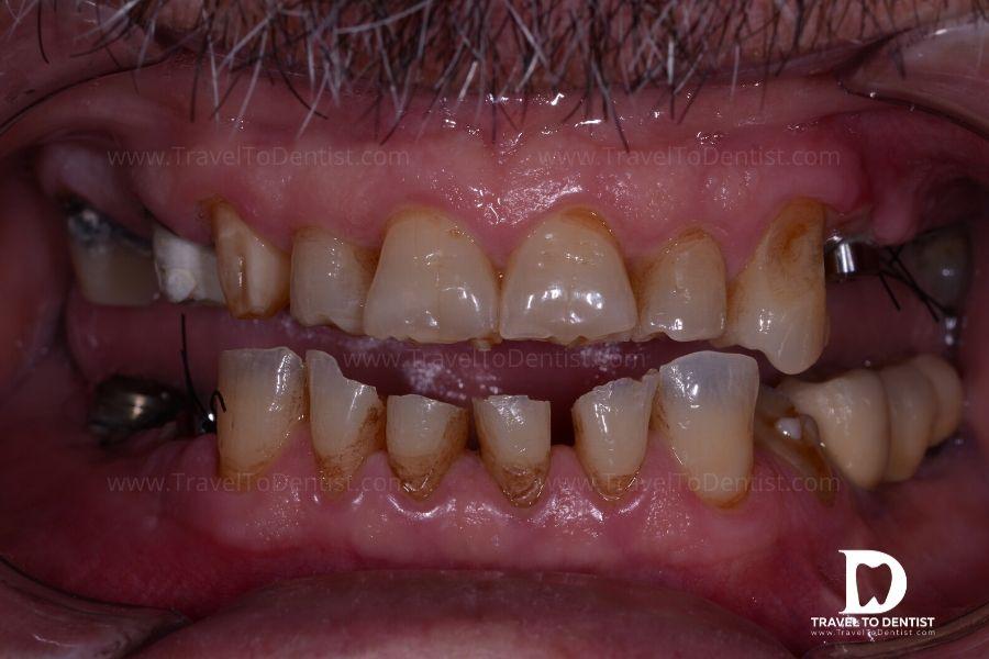 boli ale articulațiilor și dinților)