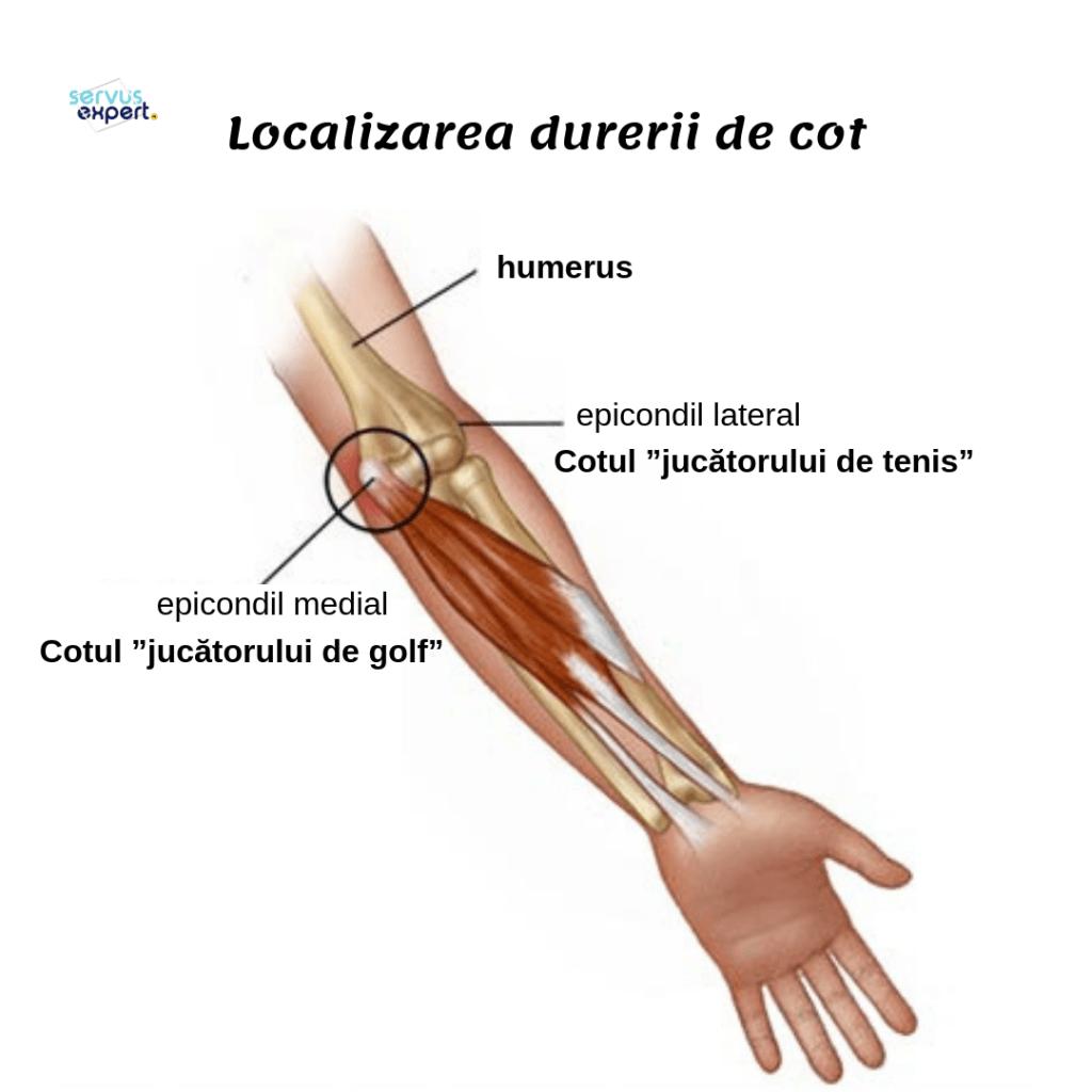 durere ascuțită în articulația cotului în timpul extensiei)