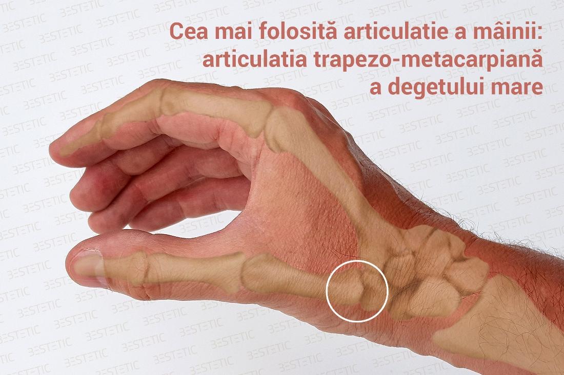 articulația mâinii doare