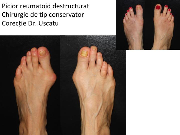 artrita reumatoidă a articulațiilor piciorului)