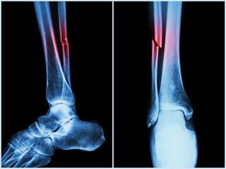 unguente pentru dezvoltarea articulațiilor după fracturi