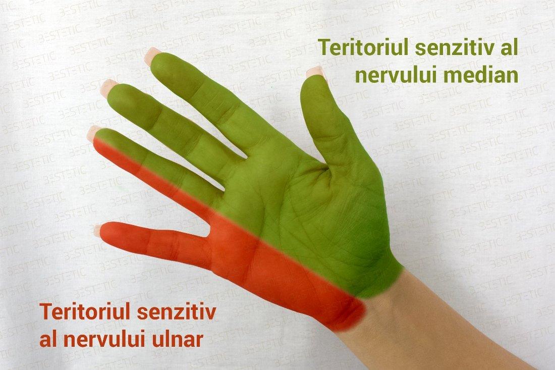 durere la mâini și amorțeală semne radiologice de artroză a articulațiilor interfalangiene distale