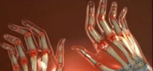 umflarea articulațiilor pe mâna dreaptă