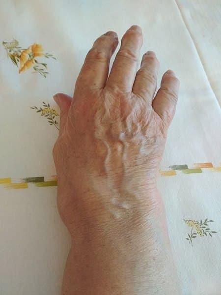 artrita artrita articulației umărului paraziți de dureri articulare și musculare