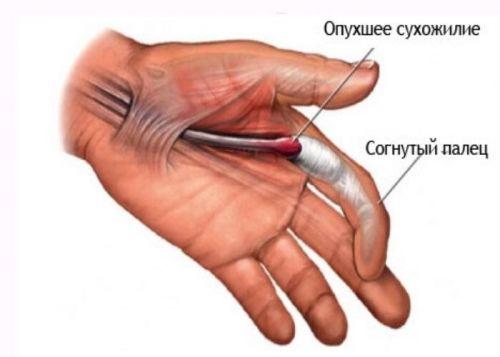 inflamația articulației degetului mare ce trebuie făcut
