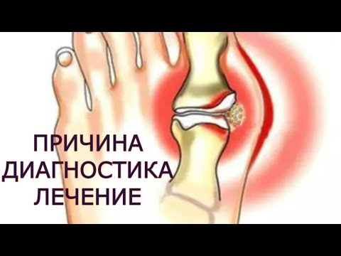 inflamația lichidului articular al articulației șoldului