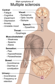 tratamentul sclerozei de șold