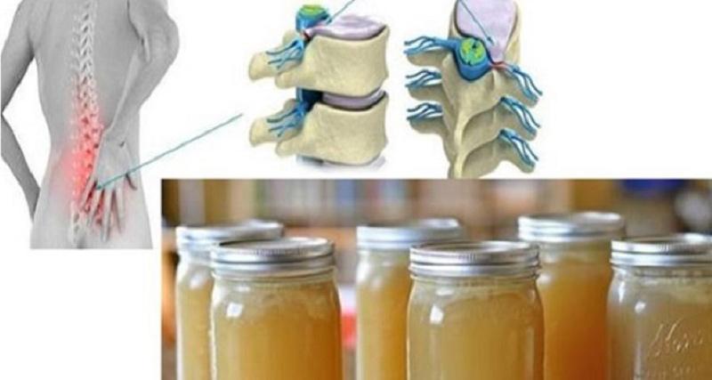 cum se utilizează gelatina pentru durerile articulare