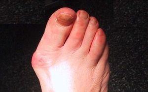 umflarea articulației pe picior pe degetul mare