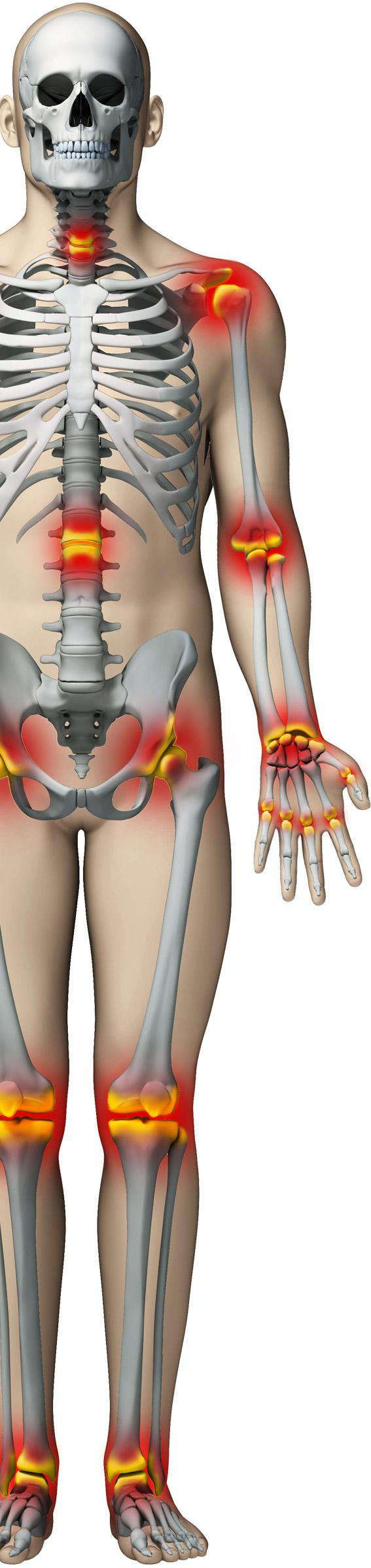 cum să opriți artroza articulară