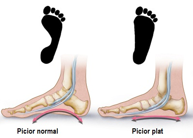 durere în articulația gleznei și arcul piciorului)