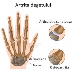 simptomele inflamației articulațiilor mâinii