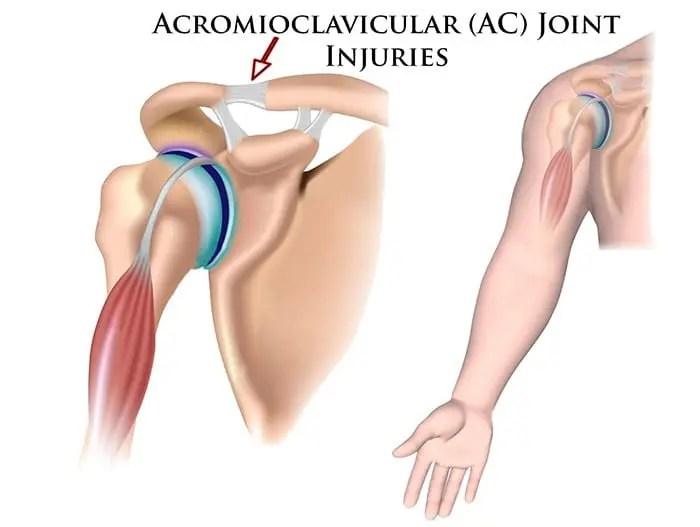 Ruptura articulară acromioclaviculară