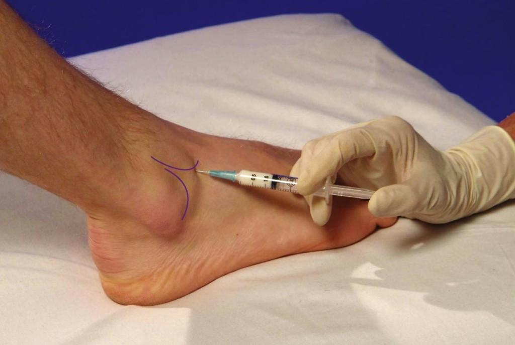 injectarea medicamentului în articulația gleznei)