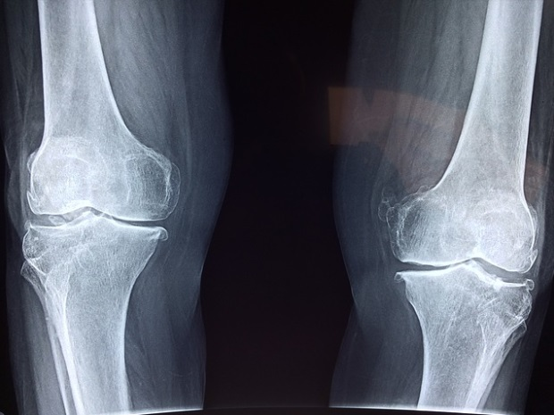 toate articulațiile genunchiului și tratamentul lor