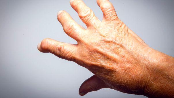 Tratamentul artritei cu artrite cu celule stem)
