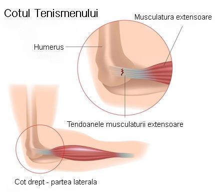 durere și inflamație a articulației cotului)
