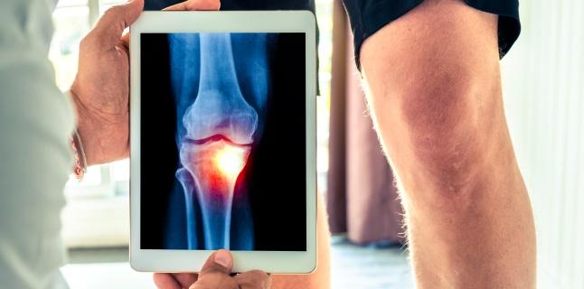 tratamentul modificărilor degenerative la genunchi
