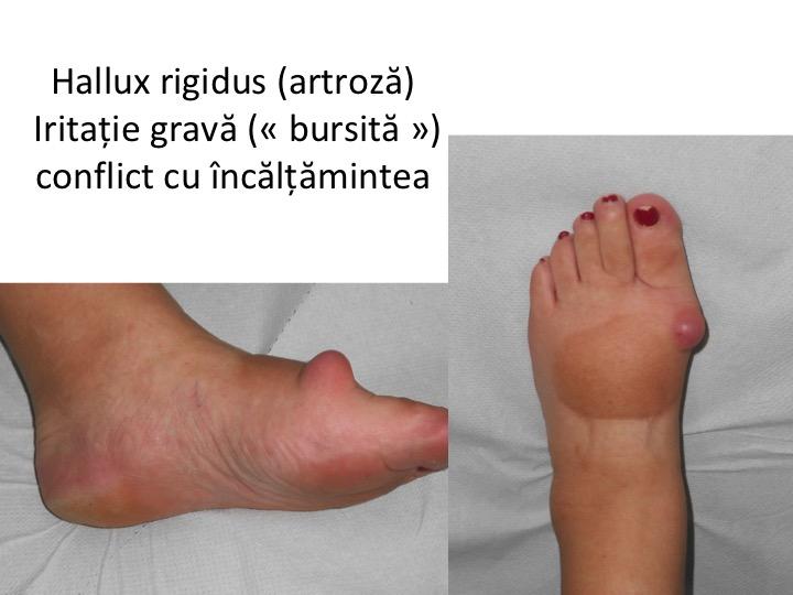 artroza articulațiilor piciorului