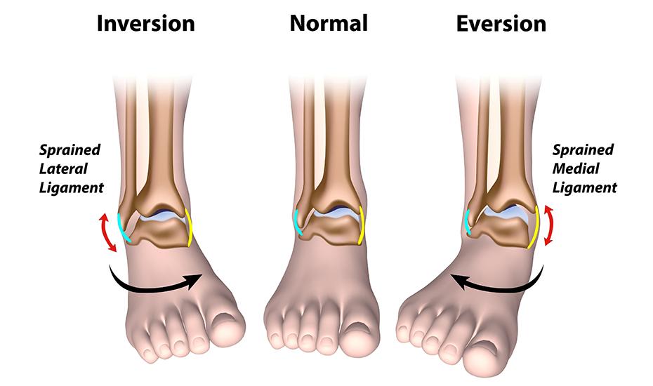artroza posttraumatică a articulației gleznei drepte
