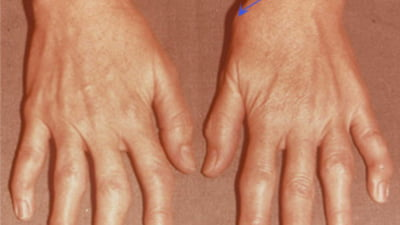 medicamente pentru tratamentul articulațiilor degetelor)